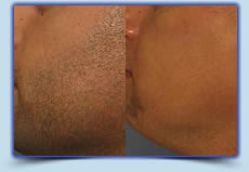 Men's Beard laser hair removal treatment