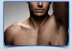 Men's underarms laser hair removal treatment